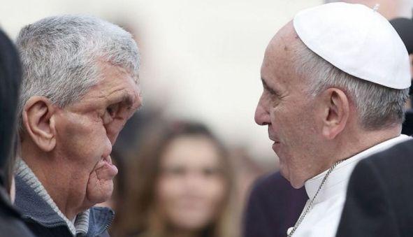 El Papa abrazó a hombre con el rostro completamente desfigurado 2