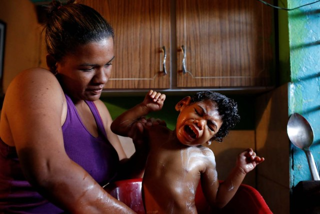 """Tatiana Rocha, baths her son Kaleth Heredia, 2, a neurological patient being treated with anticonvulsants, at their house in Caracas, Venezuela February 8, 2017. REUTERS/Carlos Garcia Rawlins TPX IMAGES OF THE DAY SEARCH """"EPILEPSY CARACAS"""" FOR THIS STORY. SEARCH """"WIDER IMAGE"""" FOR ALL STORIES."""
