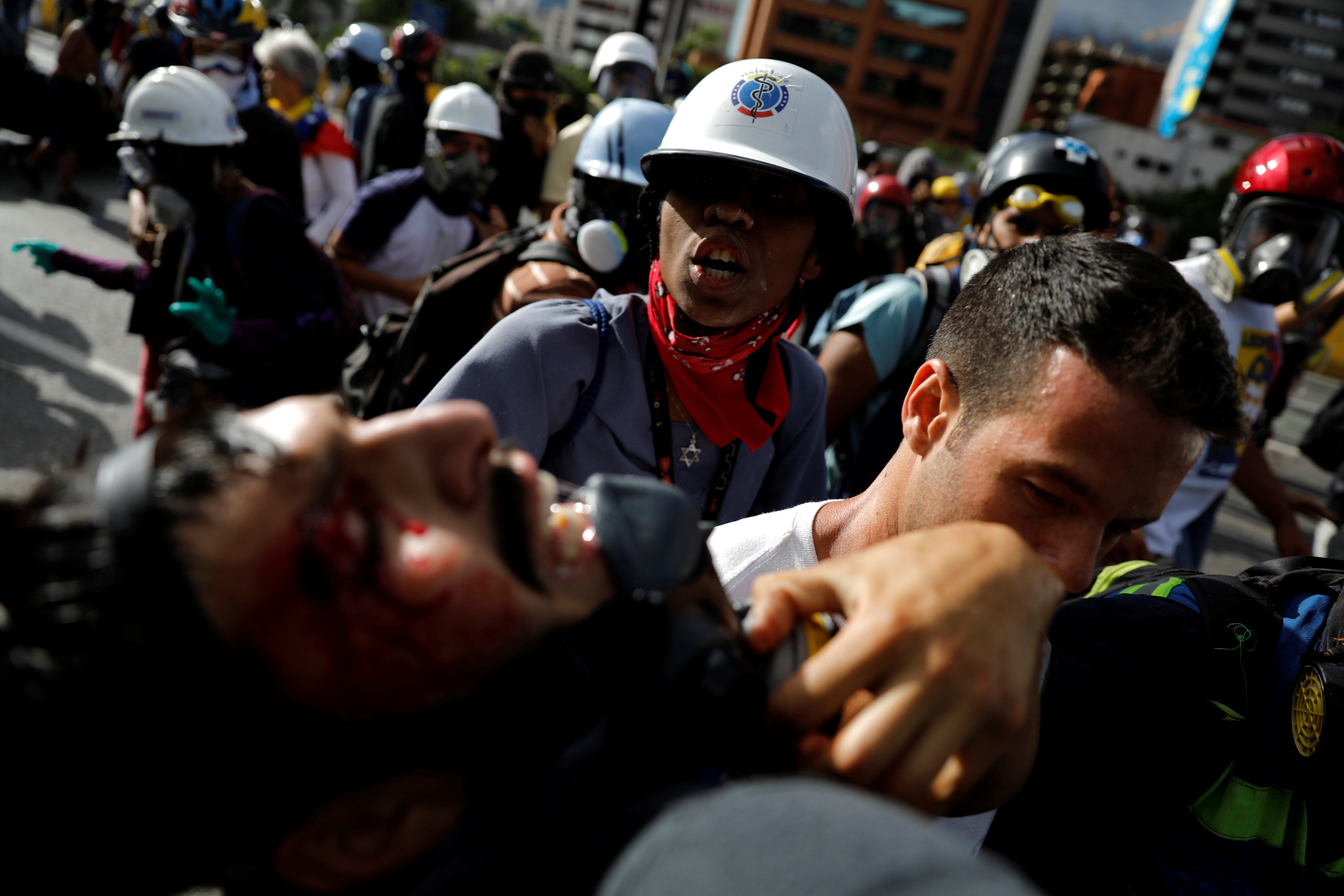 ATTENTION EDITORS - VISUALS COVERAGE OF SCENES OF DEATH OR INJURY A person reacts as an injured demonstrator is helped by others during a rally against Venezuela's President Nicolas Maduro in Caracas, Venezuela, June 10, 2017. REUTERS/Carlos Garcia Rawlins