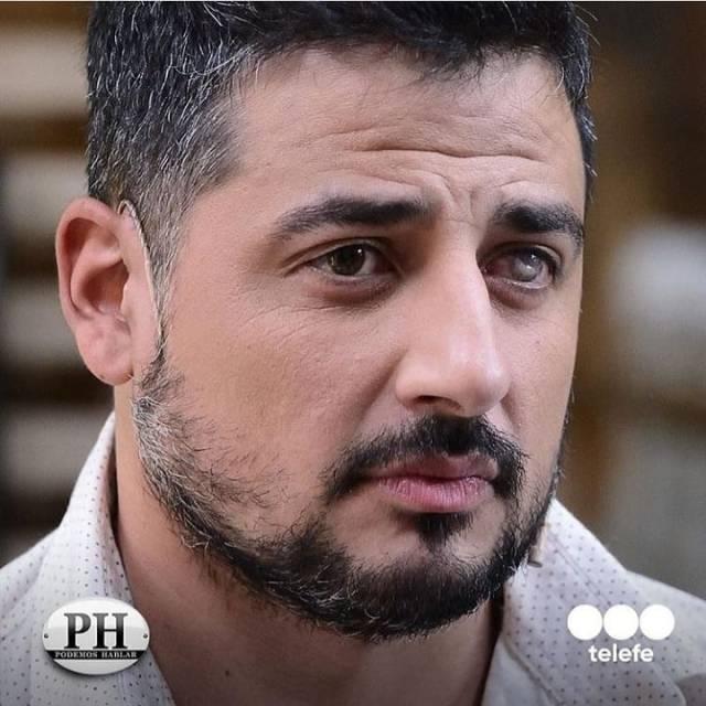 """mesagliodiego 60590859 618657655299623 544691160107803028 n - Actor la telenovela """"Rebelde"""" sufrió un terrible accidente y perdió un ojo (Foto)"""