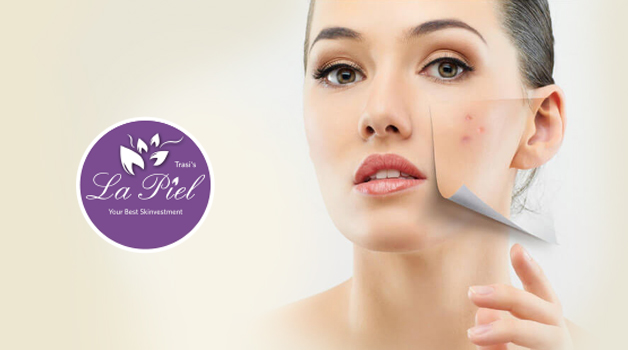 Best Skin Specialist for pcos