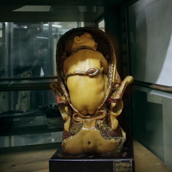 museoanatomiabebe