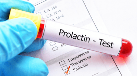 Prolactin blood test.