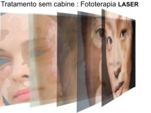 Vtrac laser