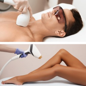 laser hair removal legs and chest