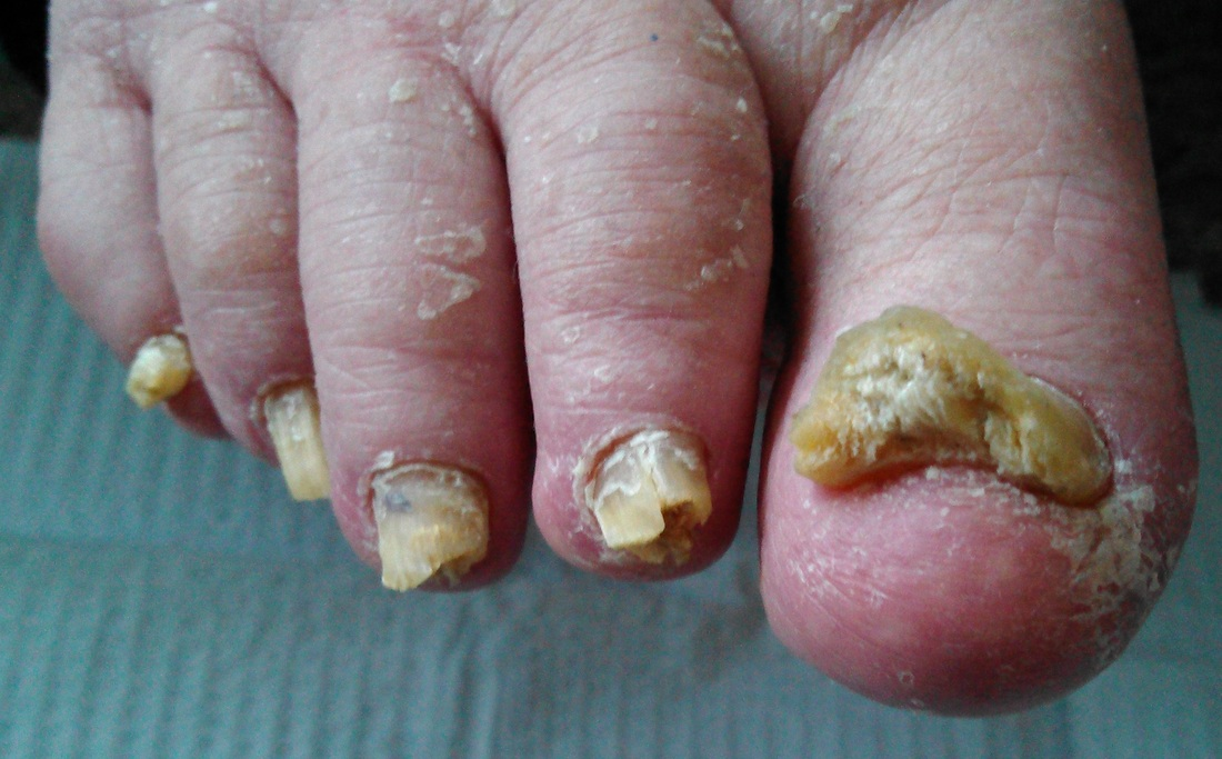 About Laser Treatment For Toenail Fungus Infections San Francisco Podiatrist Approved House Calls