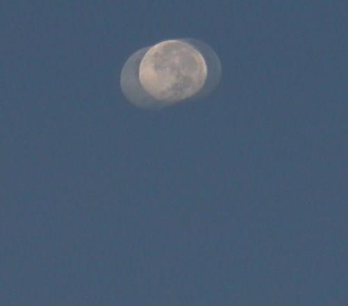 LASIK sonrası hayalet ay