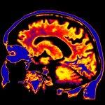 El Colegio Imperial lanza el primer Centro para la Investigación Psicodélica del mundo