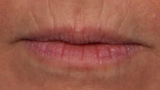 arrugas-labios