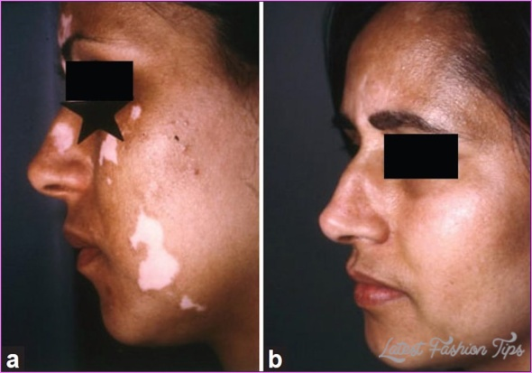 Excimer Laser Treatment For Vitiligo