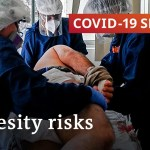 Specialists determine weight problems as main think about COVID issues | COVID19 – Particular