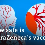 Does the AstraZeneca COVID vaccine trigger blood clots?   DW Information