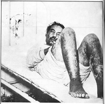 King of the Towels: The Torture and Murder of Pedro Albizu Campos