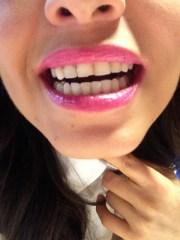 Omar me tumbo un diente.... ¿ ya vieron?