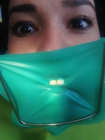 Arreglando el diente que Omar Chaparro me tumbó