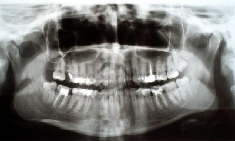 dentalxray123rf