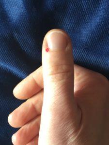 mal di gola in medicina cinese