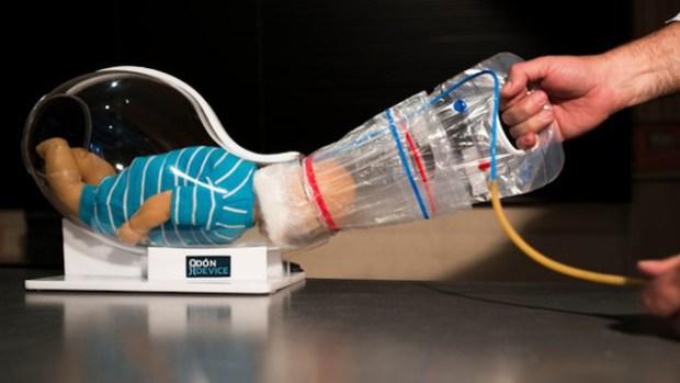 Insolite : un aspirateur de bébé pour faciliter les naissances
