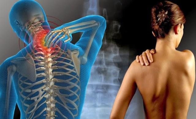 7 Ursachen für Fibromyalgie, die Ihr Arzt möglicherweise nicht kennt
