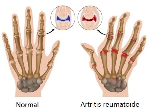 dor de artrite nas mãos