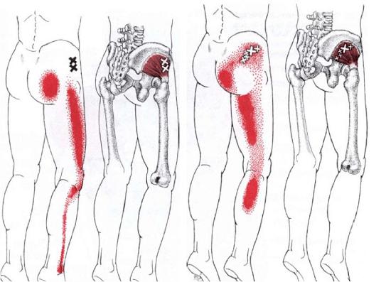 Schmerz-miofacscial-Beine