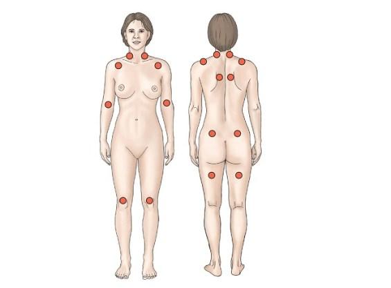 Triggerpunkte Anzeichen von Fibromyalgie