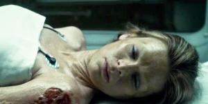 La ragazza affetta dalla Sindrome di Cotard nell'episodio della serie tv 'Hannibal'
