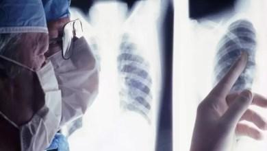 Photo of Spetta all'INAIL provare l'origine non professionale della malattia che ha colpito il lavoratore