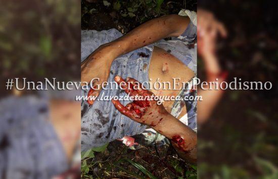 Derrapan hermanos en su motocicleta; están graves | LVDT