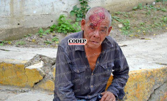 Lo golpean e intentan robarle 1500 pesos, en Tantoyuca | LVDT