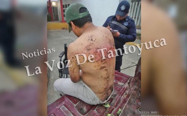 Denuncia motociclista que fue golpeado y violado por elementos de la Fuerza Civil