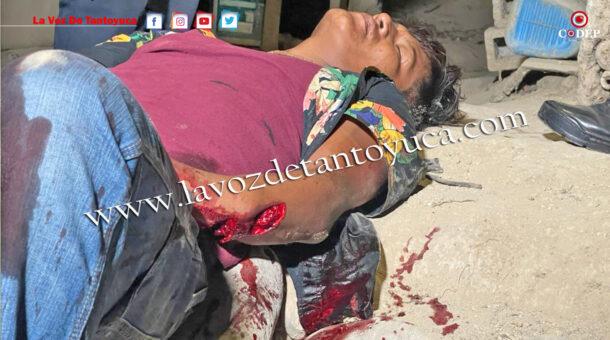 Machetean a joven en la Colonia Azteca | LVDT