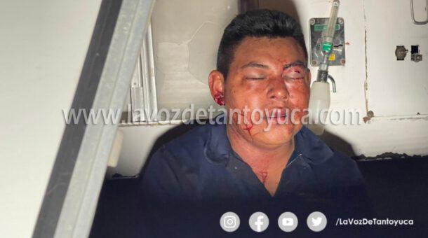 Joven resulta lesionado tras ser brutalmente golpeado