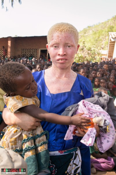 Albinolism Advacate Campaign