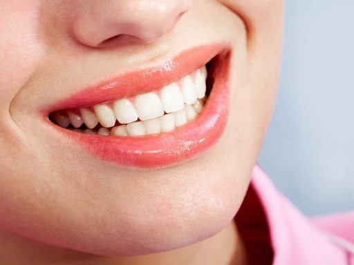Top 5 Places for Teeth Whitening in London