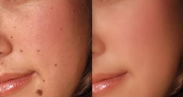 cystic-acne-after-accutane-mask-care-aspirin-skin-zj