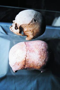 hypogeum elongated skulls