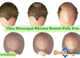 Cara Mencegah Rambut Rontok Pada Pria