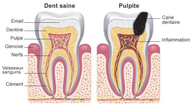 Qu'est-ce qu'une pulpite dentaire ?