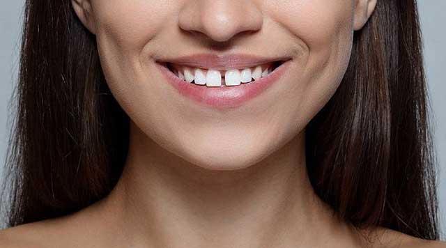 Diastème ou dents du bonheur
