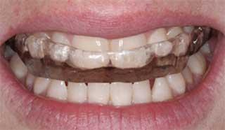 Gouttière occlusale sur bouche