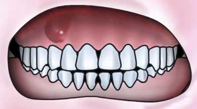 Fistule dentaire : identifier, traiter et prévenir