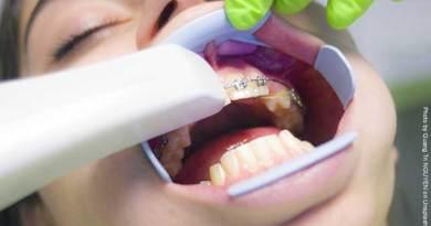 Appareil dentaire : à quoi s'attendre ?