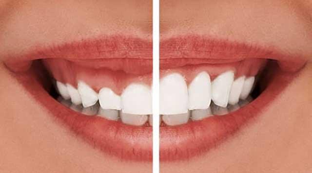 Comment réparer mon sourire gingival ?