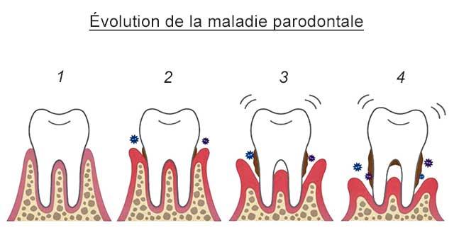 Parodontite : Symptômes, causes et traitements