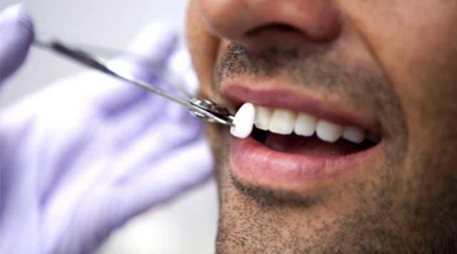 Types de facettes dentaires