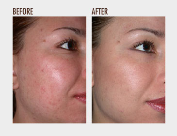 All about Microdermabrasion |Microderm Before & After