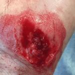 hand wound