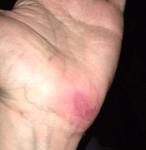 Hand Wound Day 25