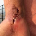 Carpel Tunnel Surgery